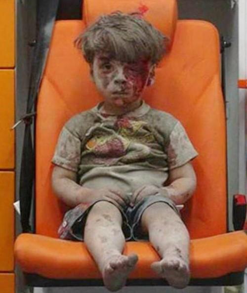 syrian child five Omran Daqneesh